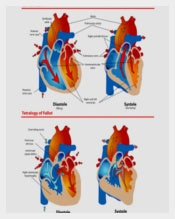 Anatomical-Heart-Diagram-of-Blue-Baby