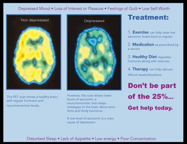 depression-treatment-brochure